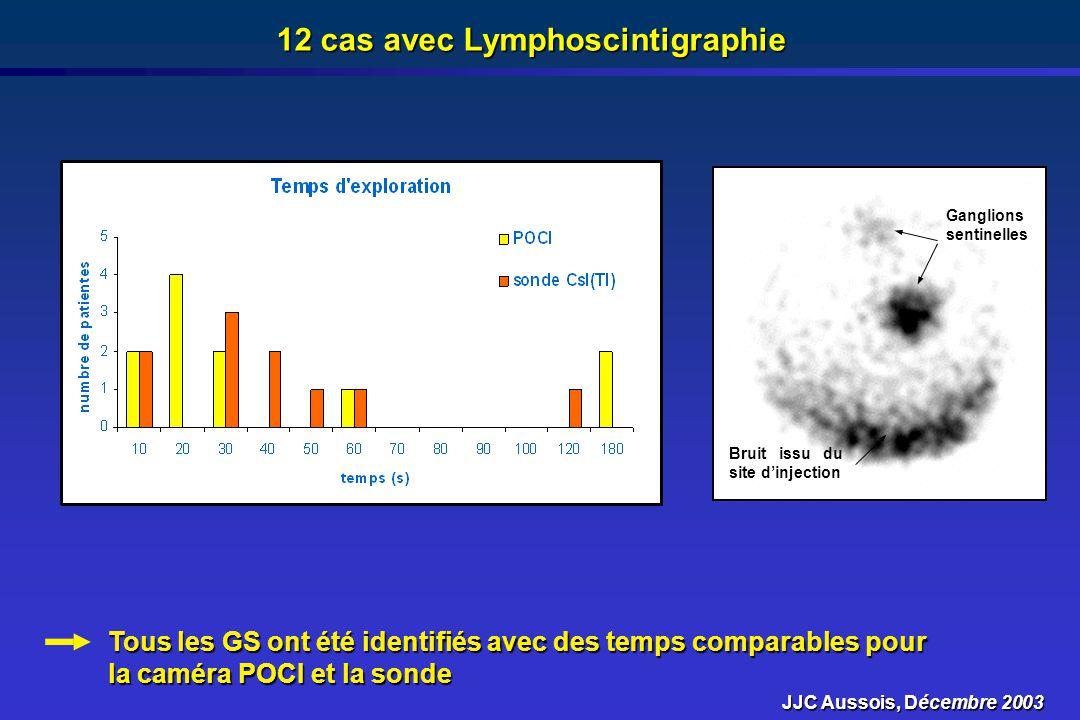 12 cas avec Lymphoscintigraphie Tous les GS ont été identifiés avec des temps comparables pour la caméra POCI et la sonde Ganglions sentinelles Bruit