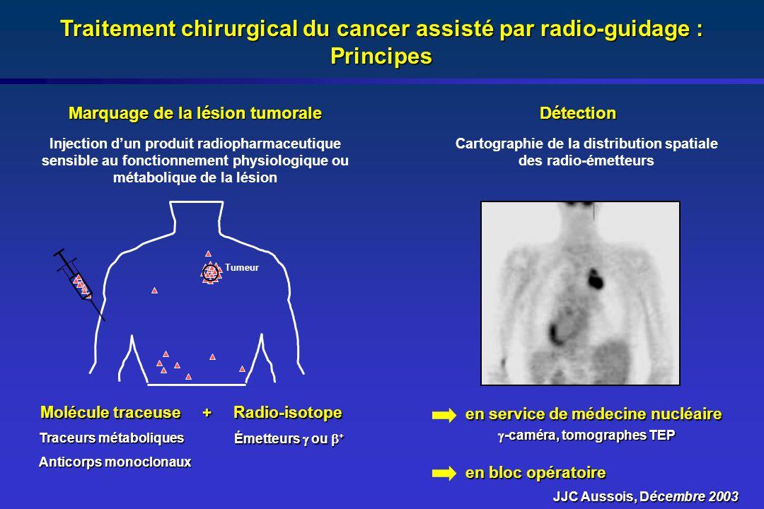 Traitement chirurgical du cancer assisté par radio-guidage : Principes Marquage de la lésion tumorale Détection Traceurs métaboliques Anticorps monocl