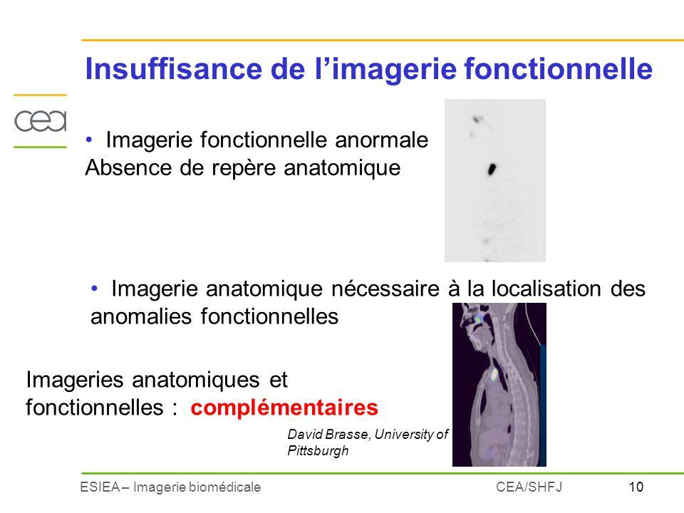 10ESIEA – Imagerie biomédicaleCEA/SHFJ Imagerie fonctionnelle anormale Absence de repère anatomique Imagerie anatomique nécessaire à la localisation d