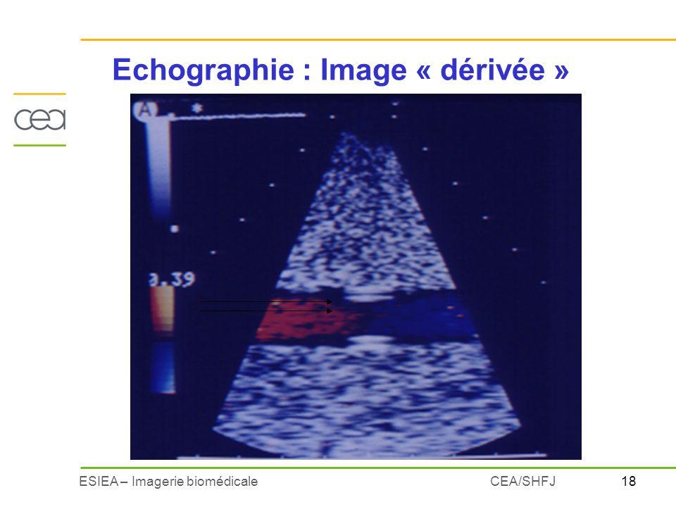18ESIEA – Imagerie biomédicaleCEA/SHFJ Echographie : Image « dérivée »