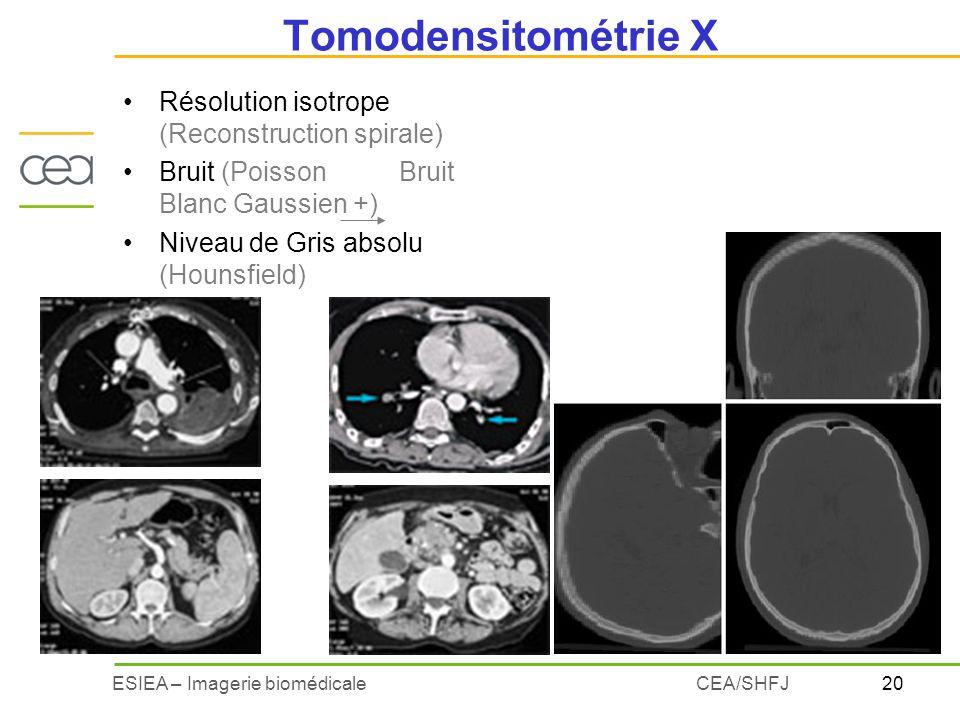 20ESIEA – Imagerie biomédicaleCEA/SHFJ Tomodensitométrie X Résolution isotrope (Reconstruction spirale) Bruit (Poisson Bruit Blanc Gaussien +) Niveau