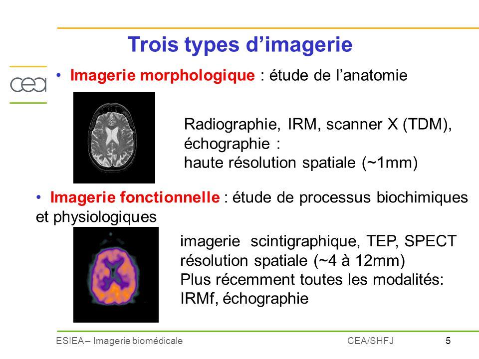 16ESIEA – Imagerie biomédicaleCEA/SHFJ Contenu du pixel/voxel –Réflexion ultrasonore (interface) –Atténuation des rayons X (TDM, scanner X) –Concentration du radio-traceur (PET/SPECT) –Densité de protons (T1, T2, T2*) en IRM Bruits Artéfacts Caractéristiques des images