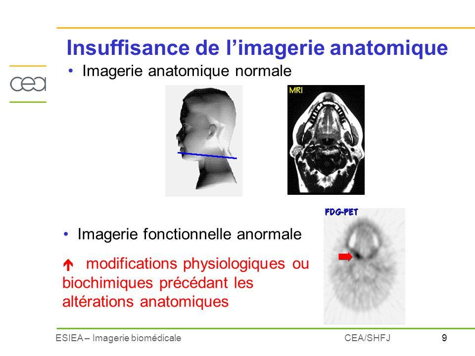 9ESIEA – Imagerie biomédicaleCEA/SHFJ Imagerie anatomique normale Imagerie fonctionnelle anormale é modifications physiologiques ou biochimiques précé
