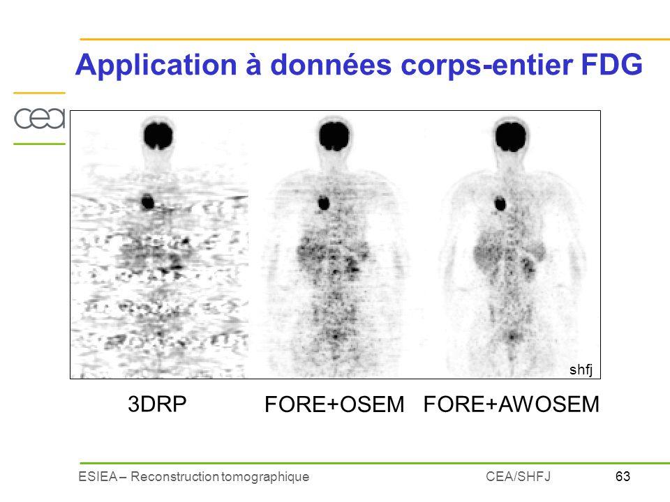 63ESIEA – Reconstruction tomographiqueCEA/SHFJ Application à données corps-entier FDG 3DRP FORE+OSEM FORE+AWOSEM shfj