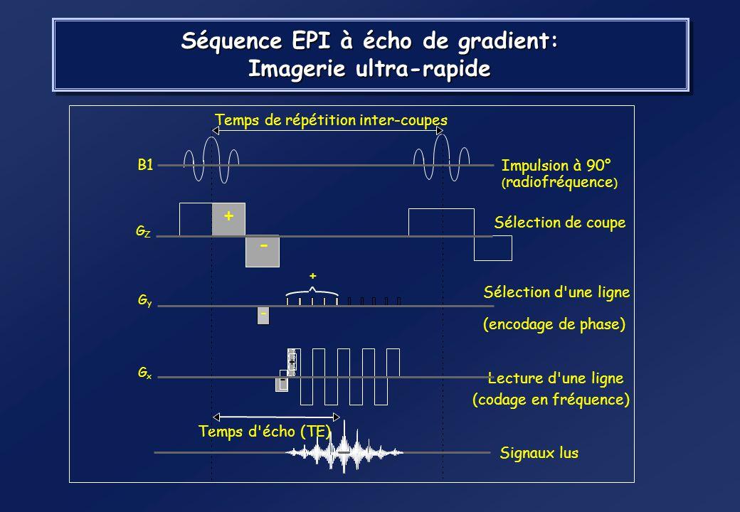 Séquence EPI : principe EPI Parcours du k-space Codage en fréquence selon x Encodage de phase selon y