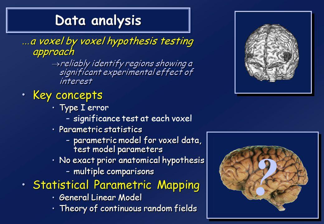 time Analyse des données en IRMf