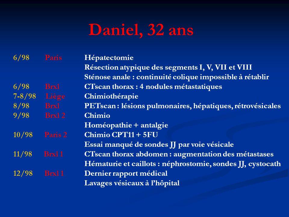 6/98 ParisHépatectomie Résection atypique des segments I, V, VII et VIII Sténose anale : continuité colique impossible à rétablir 6/98 Brxl CTscan thorax : 4 nodules métastatiques 7-8/98 LiègeChimiothérapie 8/98 Brxl PETscan : lésions pulmonaires, hépatiques, rétrovésicales 9/98 Brxl 2Chimio Homéopathie + antalgie 10/98 Paris 2Chimio CPT11 + 5FU Essai manqué de sondes JJ par voie vésicale 11/98 Brxl 1CTscan thorax abdomen : augmentation des métastases Hématurie et caillots : néphrostomie, sondes JJ, cystocath 12/98 Brxl 1Dernier rapport médical Lavages vésicaux à lhôpital Daniel, 32 ans