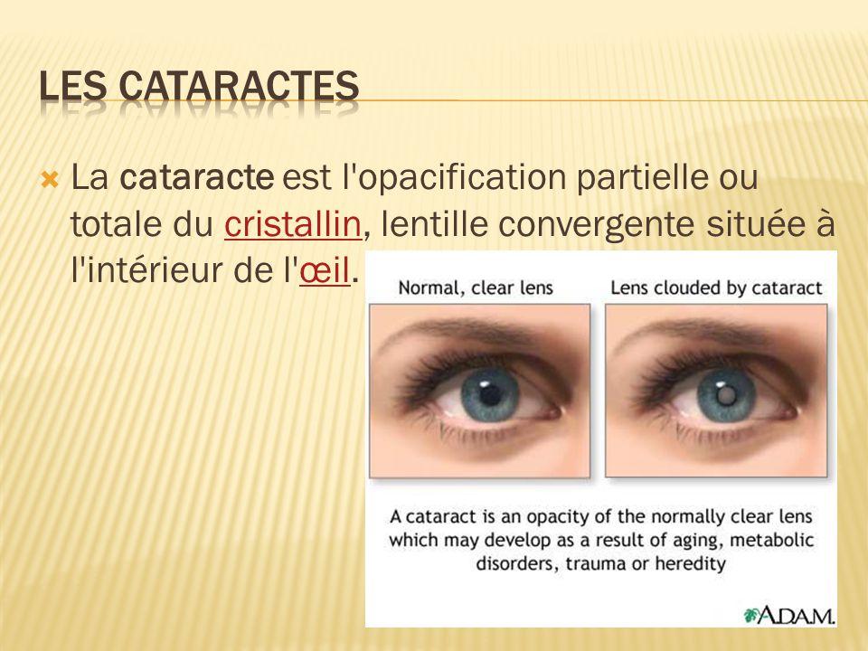 La cataracte est l'opacification partielle ou totale du cristallin, lentille convergente située à l'intérieur de l'œil.cristallinœil