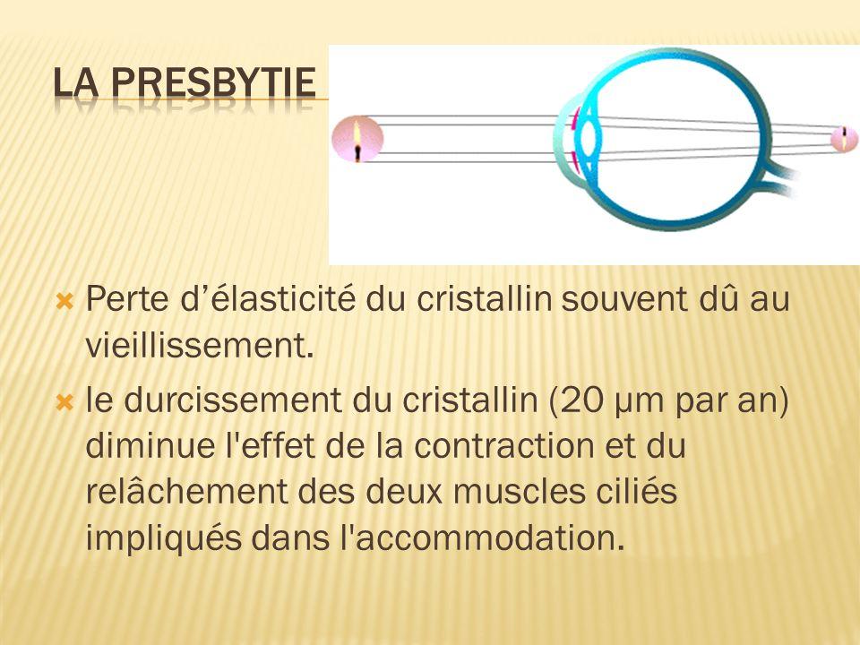 Perte délasticité du cristallin souvent dû au vieillissement. le durcissement du cristallin (20 µm par an) diminue l'effet de la contraction et du rel