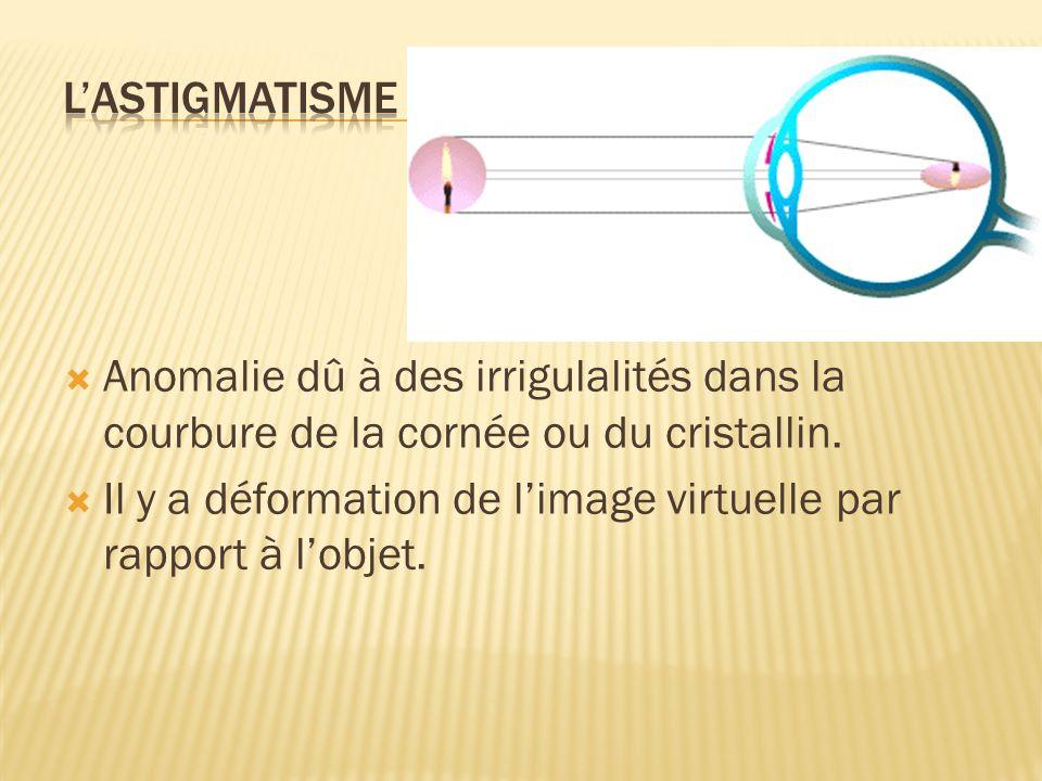Anomalie dû à des irrigulalités dans la courbure de la cornée ou du cristallin. Il y a déformation de limage virtuelle par rapport à lobjet.