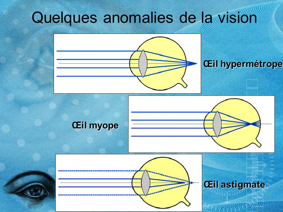 Quelques anomalies de la vision Œil hypermétrope Œil myope Œil astigmate