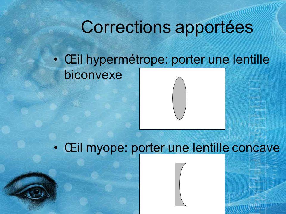 Défauts de la vision Test du point aveugle Test de dépistage du daltonisme