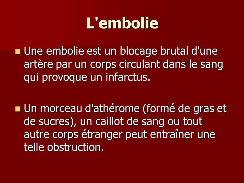 L'embolie Une embolie est un blocage brutal d'une artère par un corps circulant dans le sang qui provoque un infarctus. Une embolie est un blocage bru