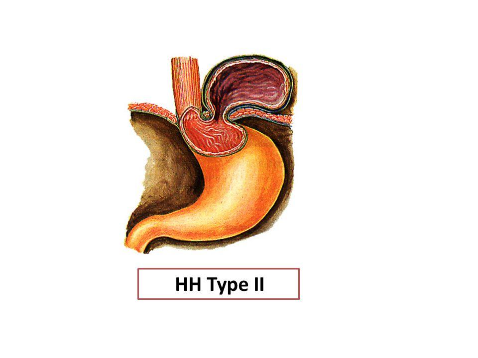 HH Type II