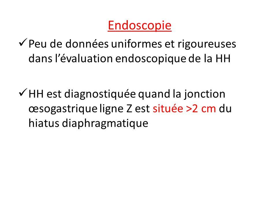 Endoscopie Peu de données uniformes et rigoureuses dans lévaluation endoscopique de la HH HH est diagnostiquée quand la jonction œsogastrique ligne Z est située >2 cm du hiatus diaphragmatique