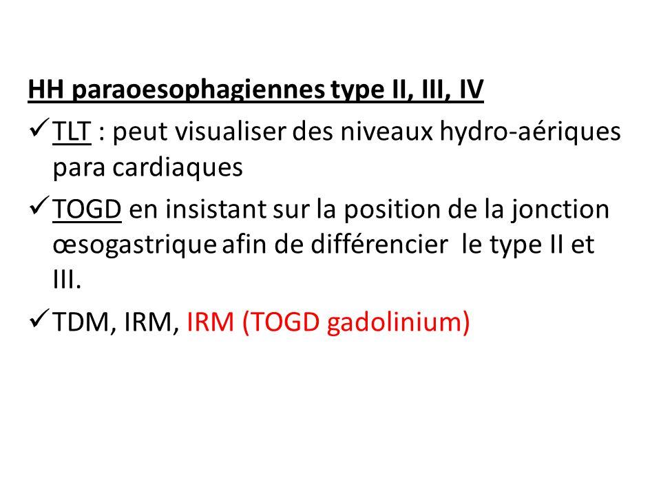 HH paraoesophagiennes type II, III, IV TLT : peut visualiser des niveaux hydro-aériques para cardiaques TOGD en insistant sur la position de la jonction œsogastrique afin de différencier le type II et III.