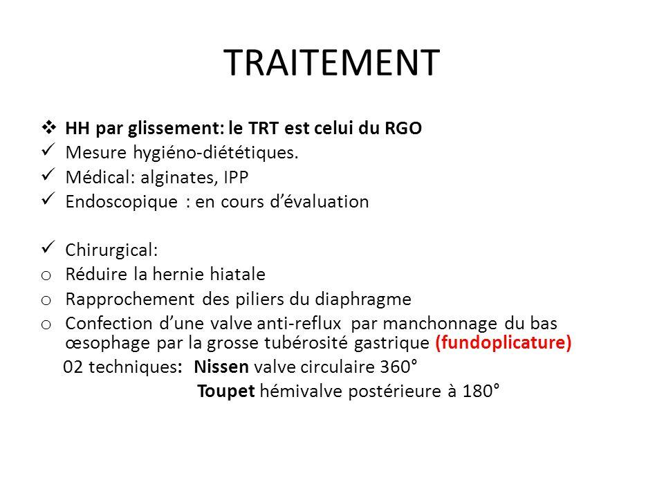 TRAITEMENT HH par glissement: le TRT est celui du RGO Mesure hygiéno-diététiques.