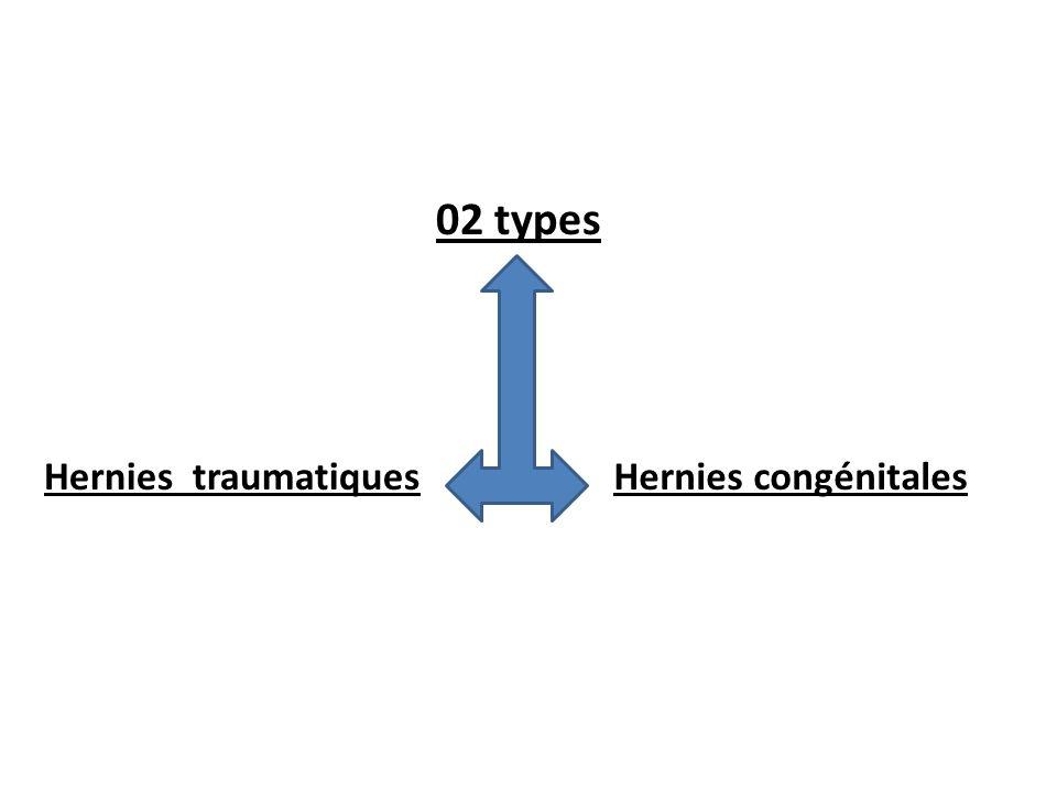 02 types Hernies congénitalesHernies traumatiques