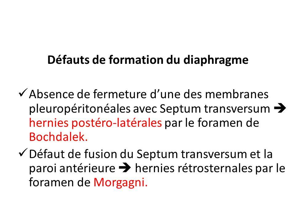 Défauts de formation du diaphragme Absence de fermeture dune des membranes pleuropéritonéales avec Septum transversum hernies postéro-latérales par le foramen de Bochdalek.