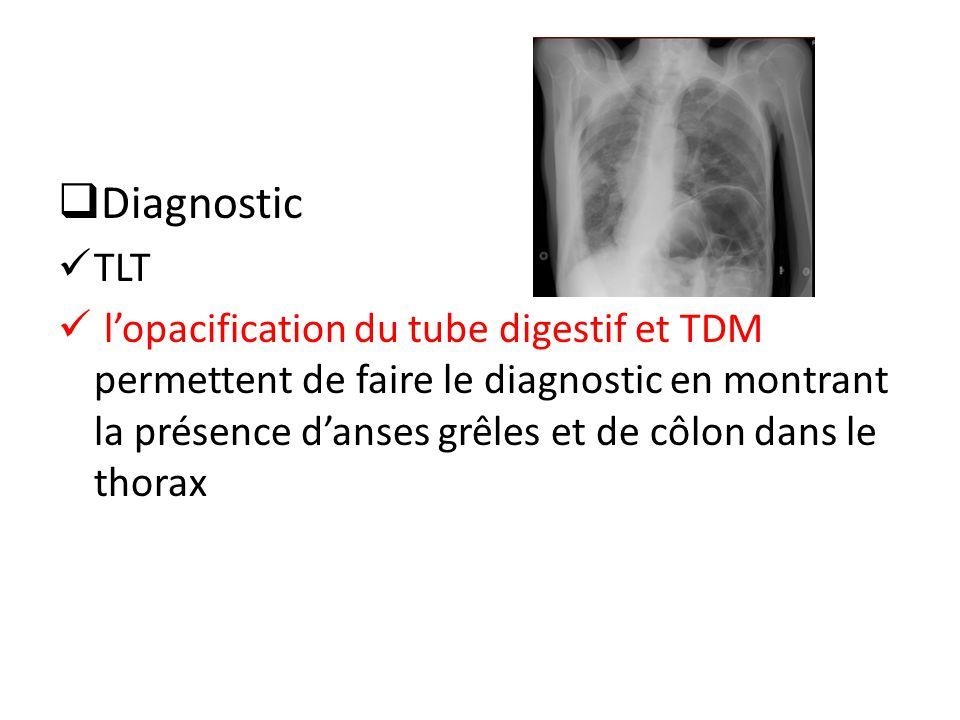 Diagnostic TLT lopacification du tube digestif et TDM permettent de faire le diagnostic en montrant la présence danses grêles et de côlon dans le thorax