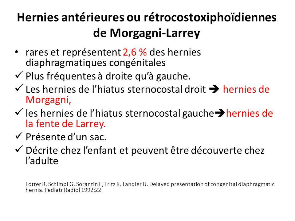 Hernies antérieures ou rétrocostoxiphoïdiennes de Morgagni-Larrey rares et représentent 2,6 % des hernies diaphragmatiques congénitales Plus fréquentes à droite quà gauche.