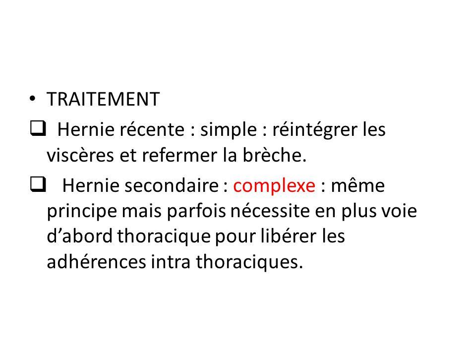 TRAITEMENT Hernie récente : simple : réintégrer les viscères et refermer la brèche.