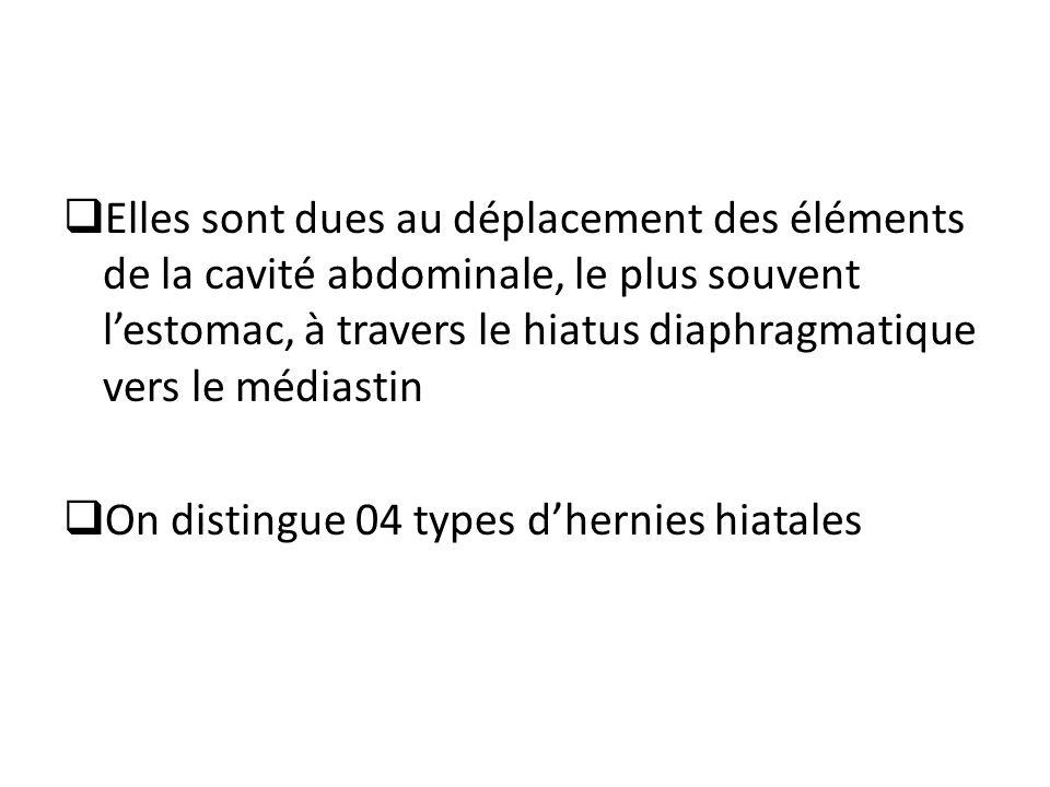 Elles sont dues au déplacement des éléments de la cavité abdominale, le plus souvent lestomac, à travers le hiatus diaphragmatique vers le médiastin On distingue 04 types dhernies hiatales