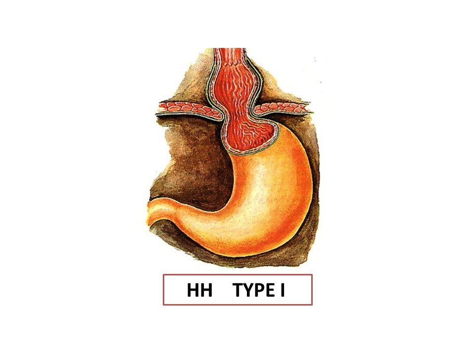 Type II,III,IV : hernies paraoesophagiennes Elles sont rares (5 à 15 % des cas).