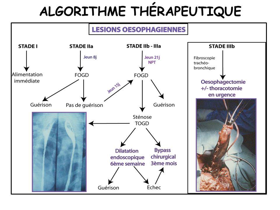ALGORITHME THÉRAPEUTIQUE
