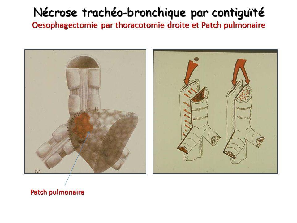 Nécrose trachéo-bronchique par contiguïté Oesophagectomie par thoracotomie droite et Patch pulmonaire Patch pulmonaire