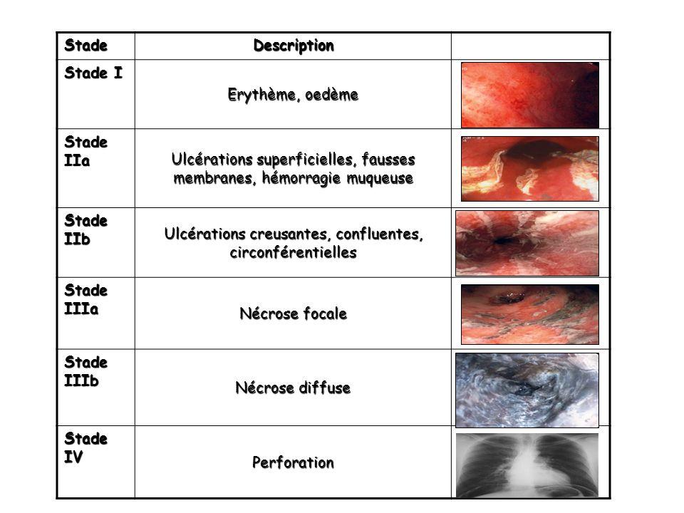 Endoscopie trachéobronchique -indication si lésions digestives de stade II car les lésions trachéobronchiques (nécrose) conditionnent le pronostic vital à court terme.