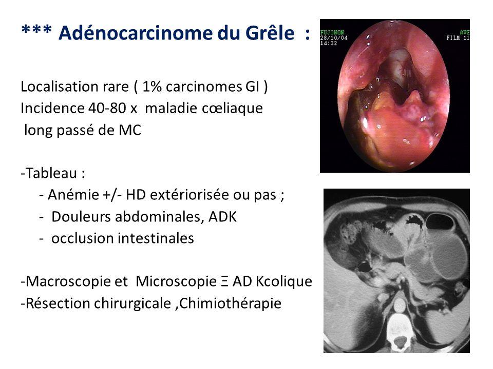 *** Adénocarcinome du Grêle : Localisation rare ( 1% carcinomes GI ) Incidence 40-80 x maladie cœliaque long passé de MC -Tableau : - Anémie +/- HD ex