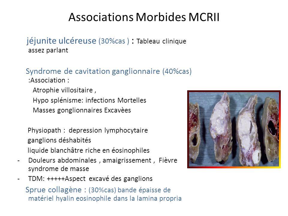 Associations Morbides MCRII jéjunite ulcéreuse (30%cas ) : Tableau clinique assez parlant Syndrome de cavitation ganglionnaire (40%cas) :Association :