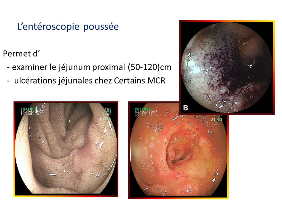 Lentéroscopie poussée Permet d - examiner le jéjunum proximal (50-120)cm - ulcérations jéjunales chez Certains MCR