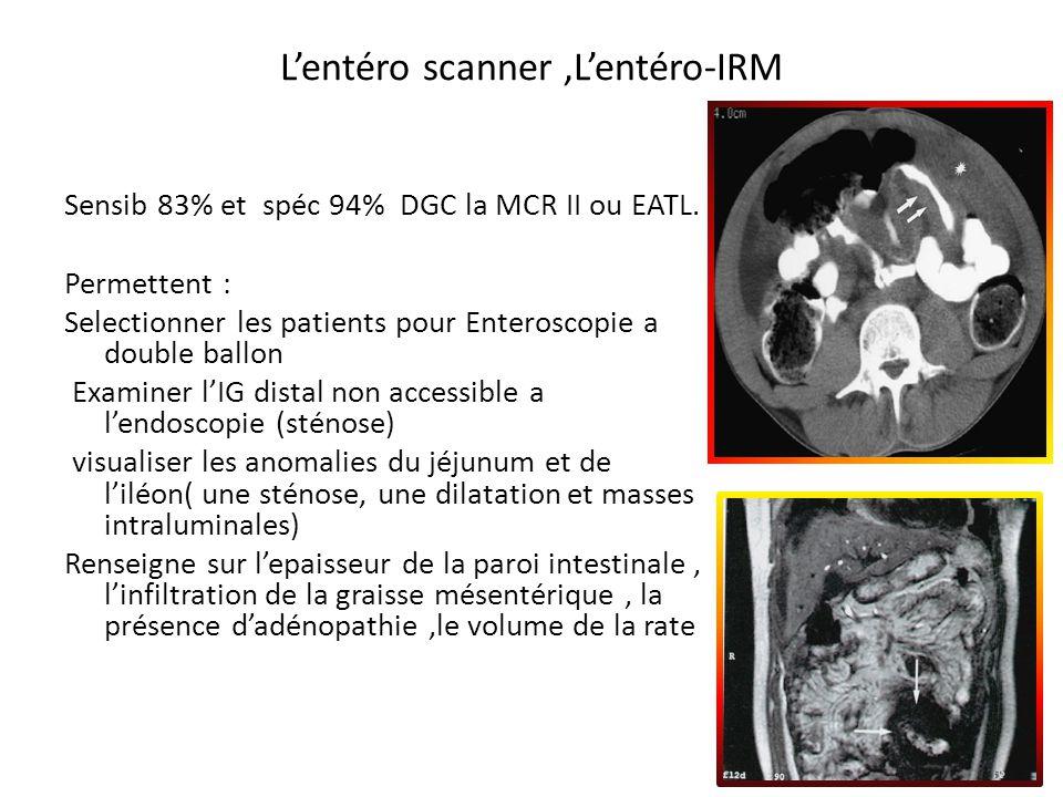Lentéro scanner,Lentéro-IRM Sensib 83% et spéc 94% DGC la MCR II ou EATL. Permettent : Selectionner les patients pour Enteroscopie a double ballon Exa