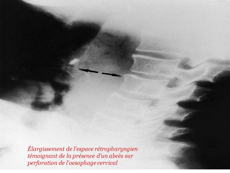 Élargissement de lespace rétropharyngien témoignant de la présence dun abcès sur perforation de loesophage cervical