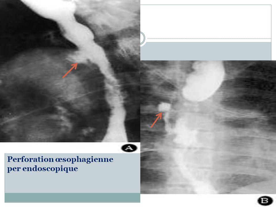 Perforation œsophagienne après dilatation AvantAprès