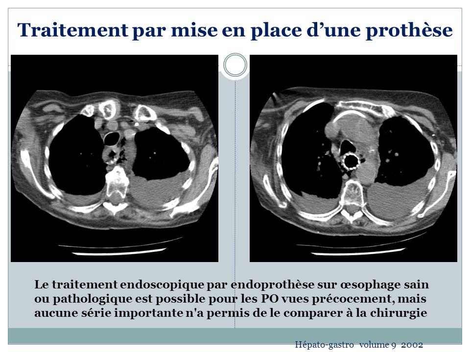 Traitement par mise en place dune prothèse Le traitement endoscopique par endoprothèse sur œsophage sain ou pathologique est possible pour les PO vues précocement, mais aucune série importante n a permis de le comparer à la chirurgie Hépato-gastro volume 9 2002