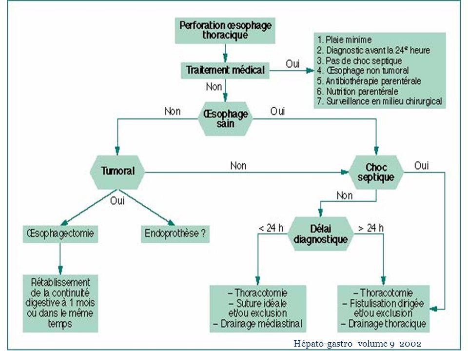 VII-Conclusion Les causes iatrogènes sont a lorigine dune PO dans la ½ des cas.