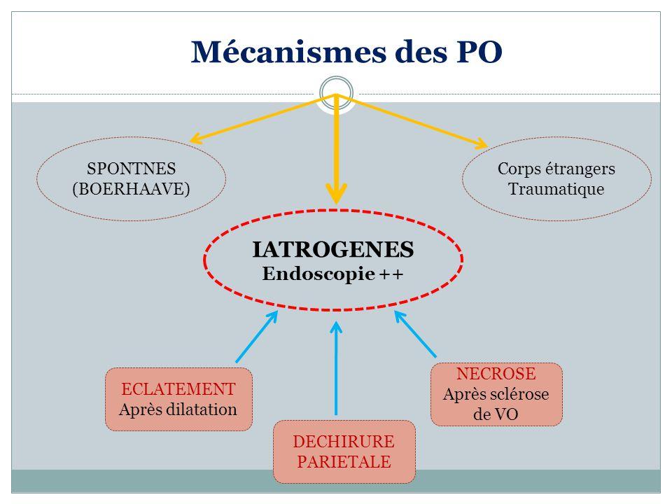 Mécanismes des PO SPONTNES (BOERHAAVE) IATROGENES Endoscopie ++ Corps étrangers Traumatique ECLATEMENT Après dilatation DECHIRURE PARIETALE NECROSE Après sclérose de VO