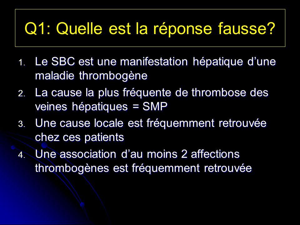 Q1: Quelle est la réponse fausse? 1. Le SBC est une manifestation hépatique dune maladie thrombogène 2. La cause la plus fréquente de thrombose des ve