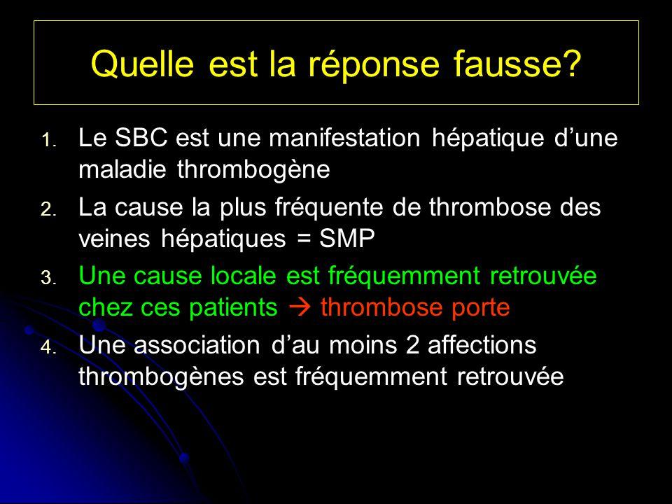 Quelle est la réponse fausse? 1. 1. Le SBC est une manifestation hépatique dune maladie thrombogène 2. 2. La cause la plus fréquente de thrombose des
