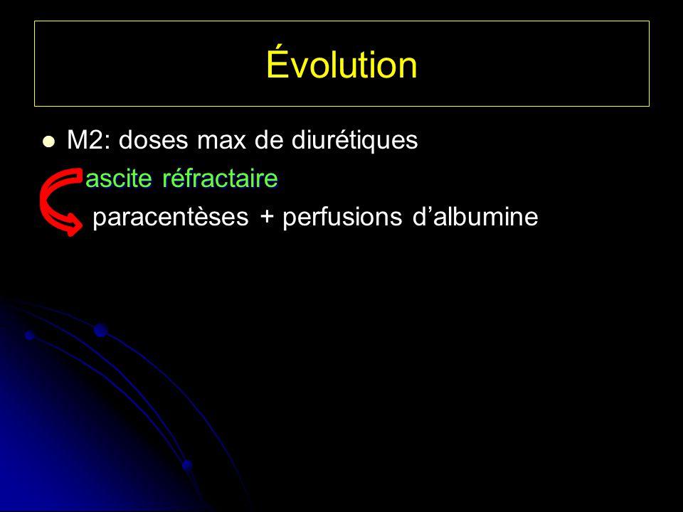 Évolution M2: doses max de diurétiques ascite réfractaire ascite réfractaire paracentèses + perfusions dalbumine