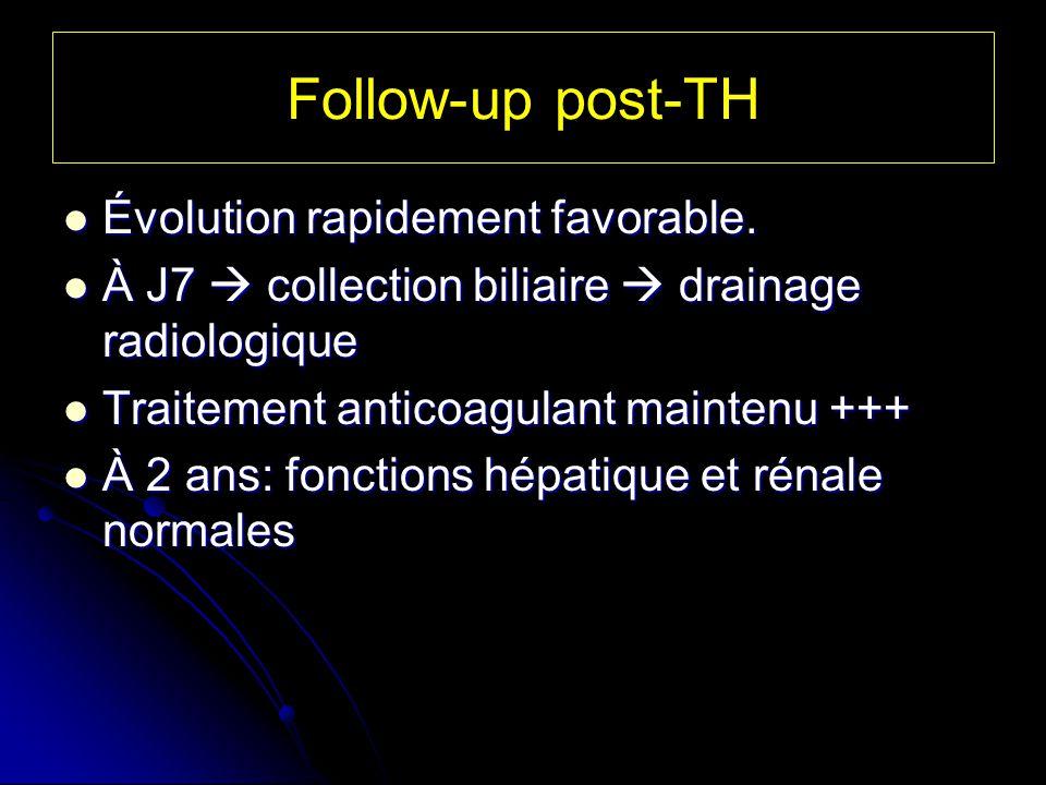 Follow-up post-TH Évolution rapidement favorable. Évolution rapidement favorable. À J7 collection biliaire drainage radiologique À J7 collection bilia
