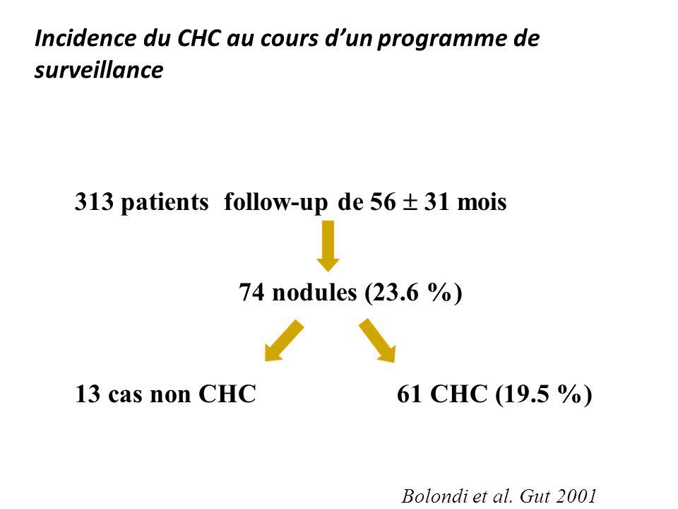Incidence du CHC au cours dun programme de surveillance 313 patients follow-up de 56 31 mois 74 nodules (23.6 %) 13 cas non CHC61 CHC (19.5 %) Bolondi
