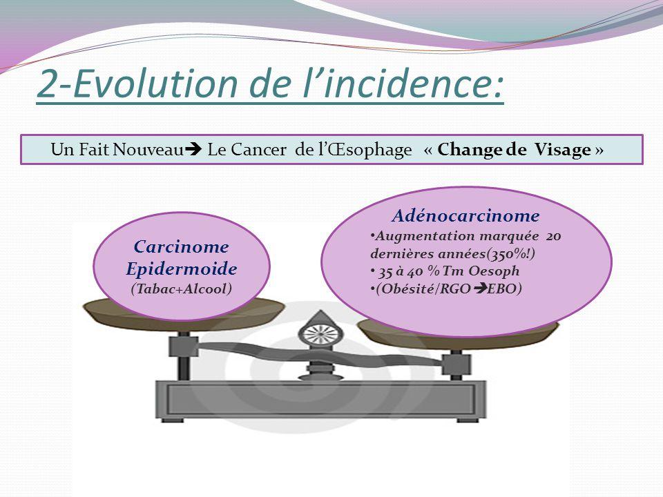 2-Evolution de lincidence: Adénocarcinome Augmentation marquée 20 dernières années(350%!) 35 à 40 % Tm Oesoph (Obésité/RGO EBO) Carcinome Epidermoide