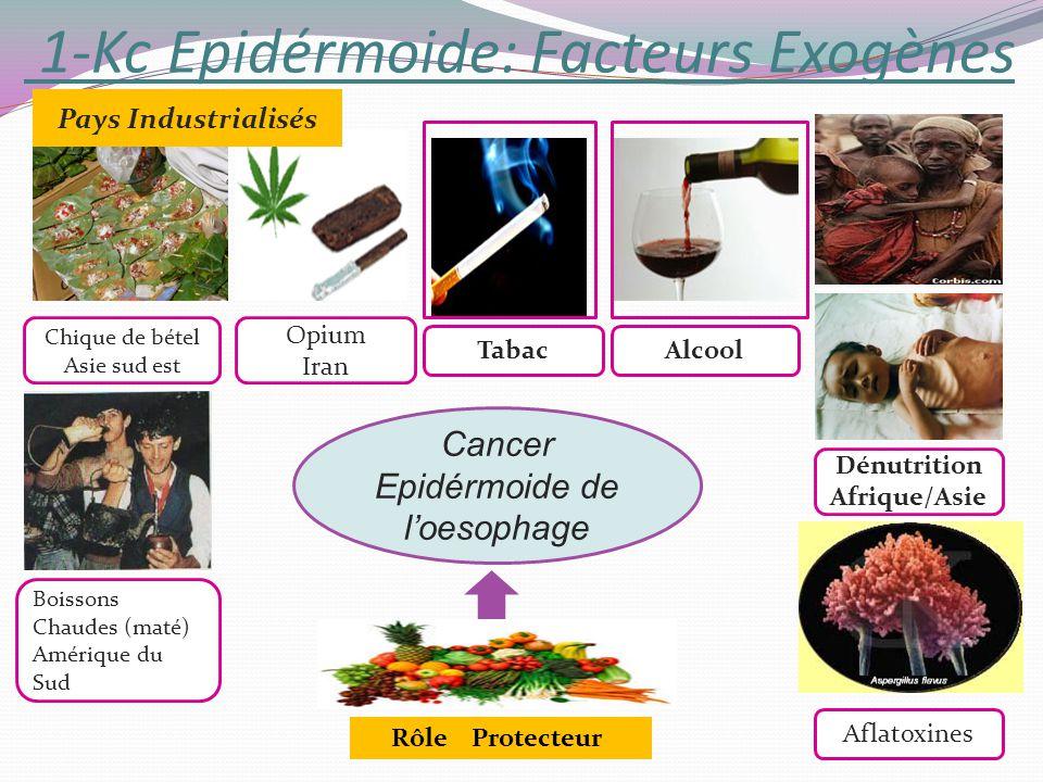 1-Kc Epidérmoide: Facteurs Exogènes Cancer Epidérmoide de loesophage Dénutrition Afrique/Asie Chique de bétel Asie sud est Boissons Chaudes (maté) Amé