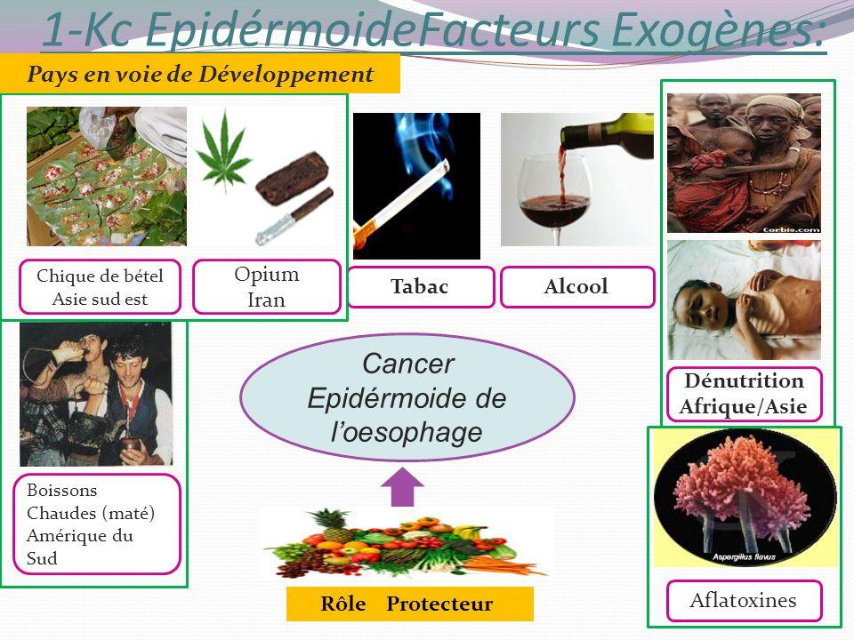 1-Kc EpidérmoideFacteurs Exogènes: Cancer Epidérmoide de loesophage Dénutrition Afrique/Asie Chique de bétel Asie sud est Boissons Chaudes (maté) Amér