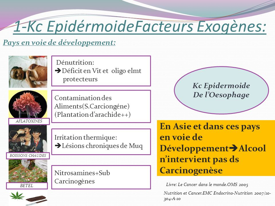 1-Kc EpidérmoideFacteurs Exogènes: Pays en voie de développement: Kc Epidermoide De lOesophage Dénutrition: Déficit en Vit et oligo elmt protecteurs C