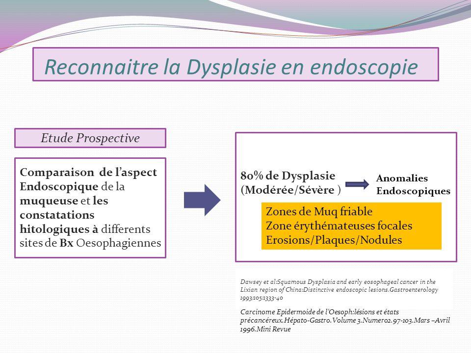 Reconnaitre la Dysplasie en endoscopie Dawsey et al:Squamous Dysplasia and early eosophageal cancer in the Lixian region of China:Distinctive endoscop
